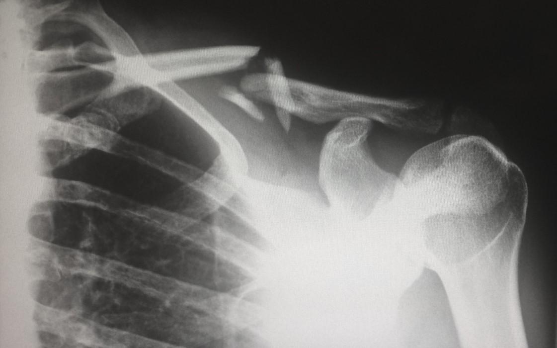 Se identifican los genes que determinan el riesgo de padecer osteoporosis