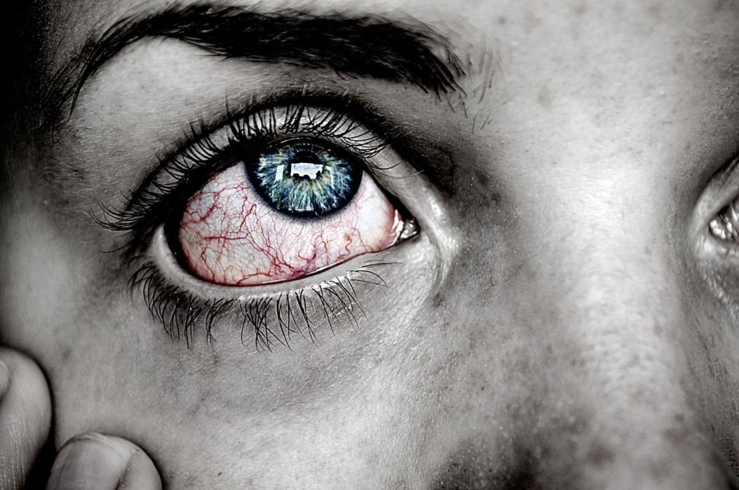 Problemas de rosácea ocular
