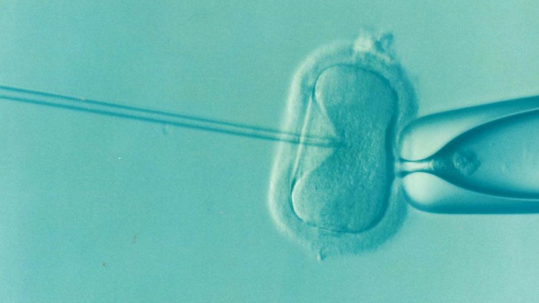 Qué es la reproducción asistida