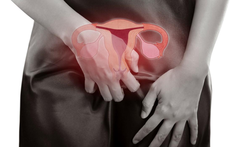 Endometriosis intestinal qué es y sus síntomas