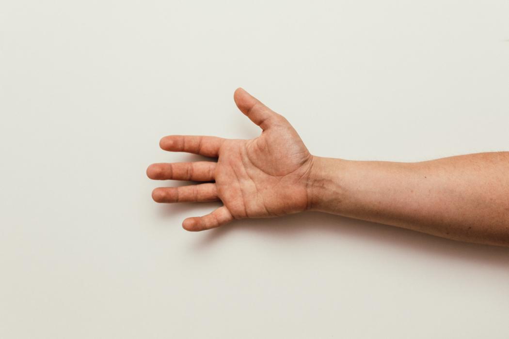 Tratamiento para la psoriasis, síntomas controlados