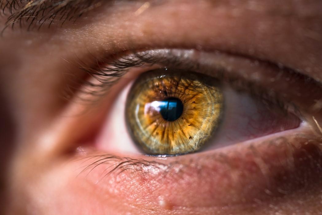 Como quitar el orzuelo del ojo