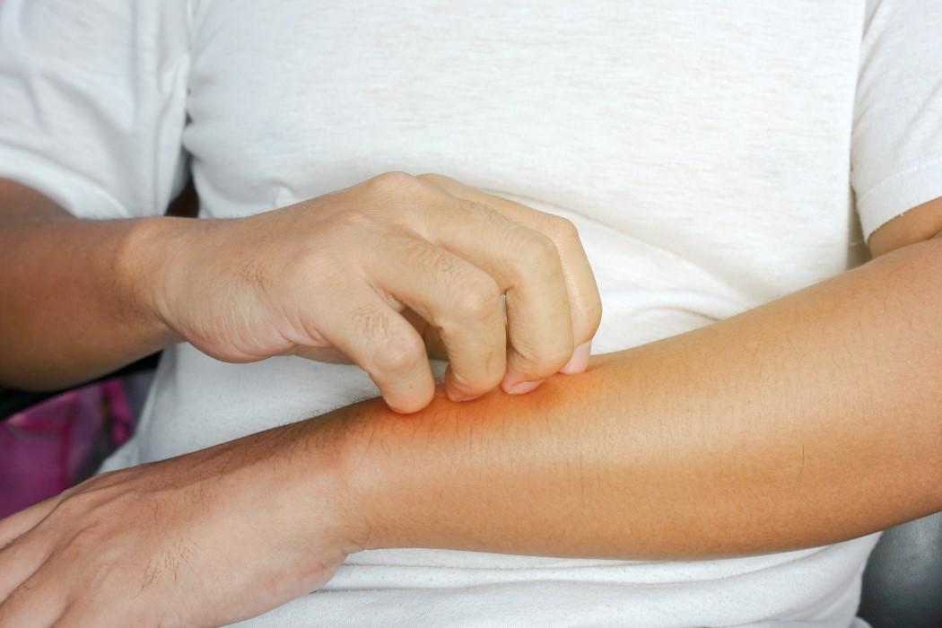 La urticaria tratamiento contra la enfermedad