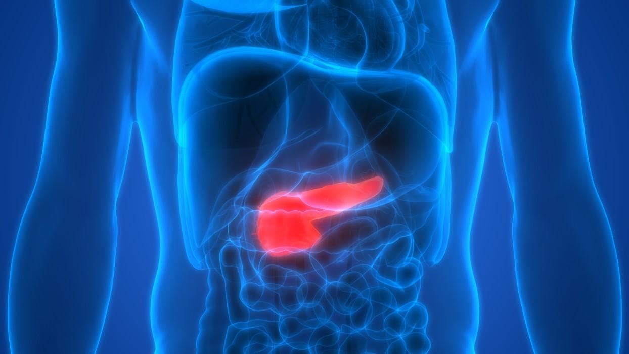 causas pancreatitis