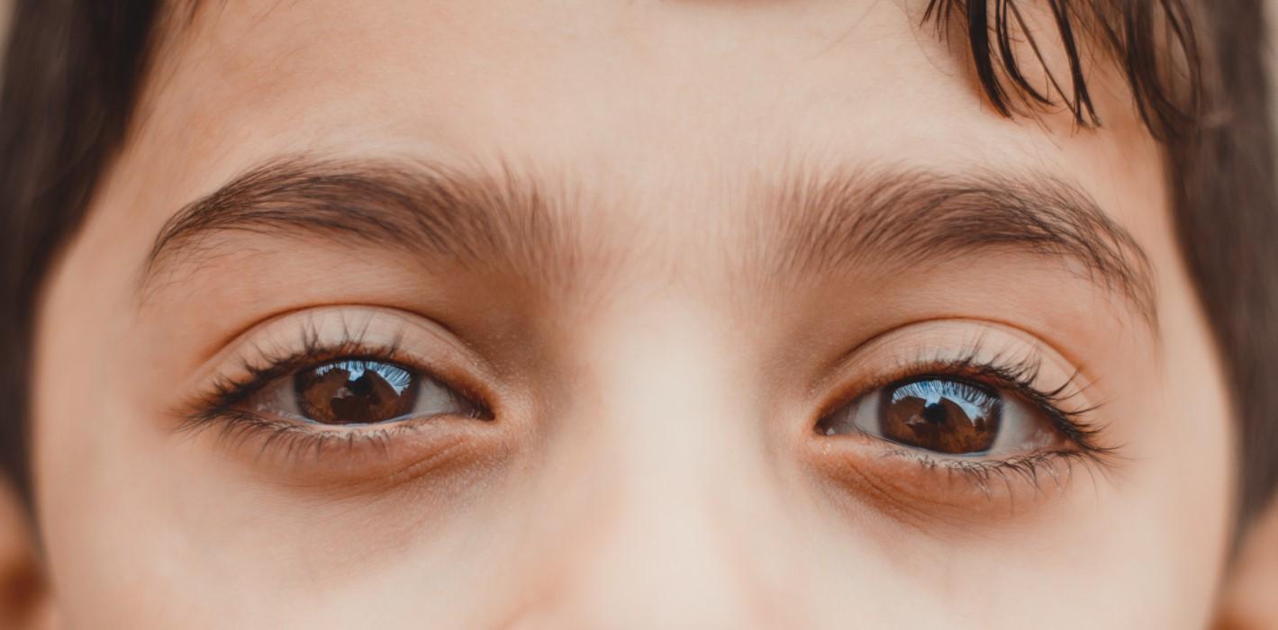 sintomas de glaucoma