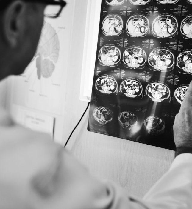 cuales son los sintomas de un infarto cerebral