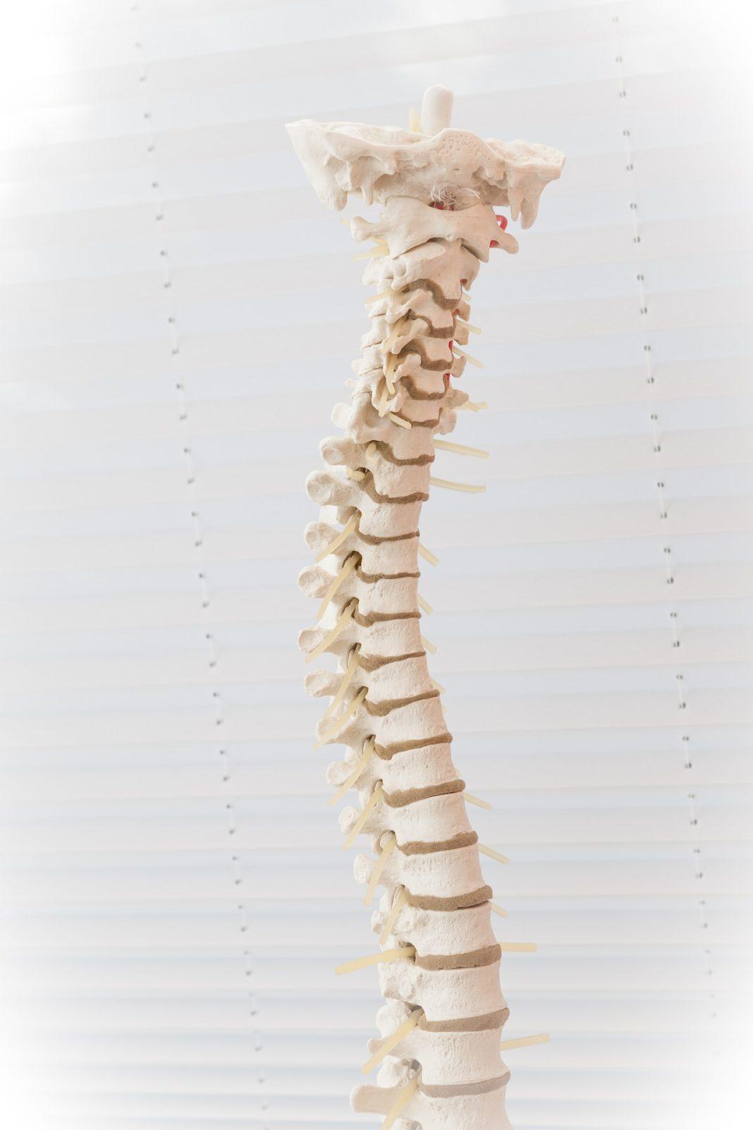 Cómo afecta una hernia discal