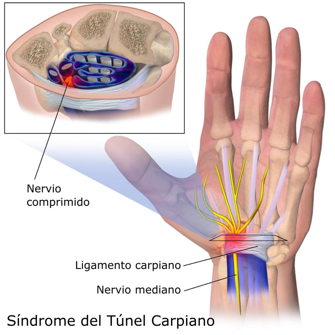 Información sobre el síndrome del túnel carpiano