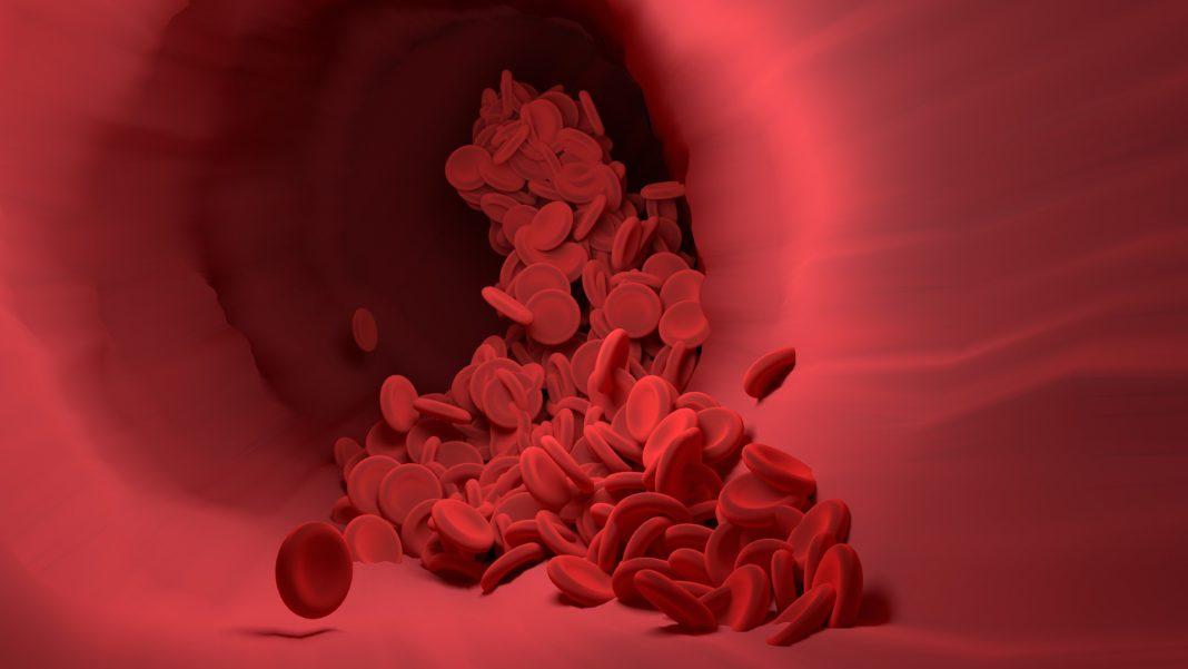 Causas y síntomas de la anemía