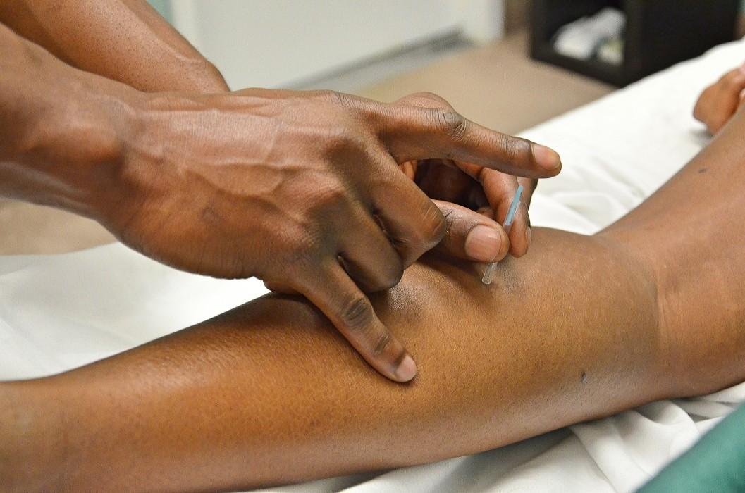 qué son los puntos de acupuntura